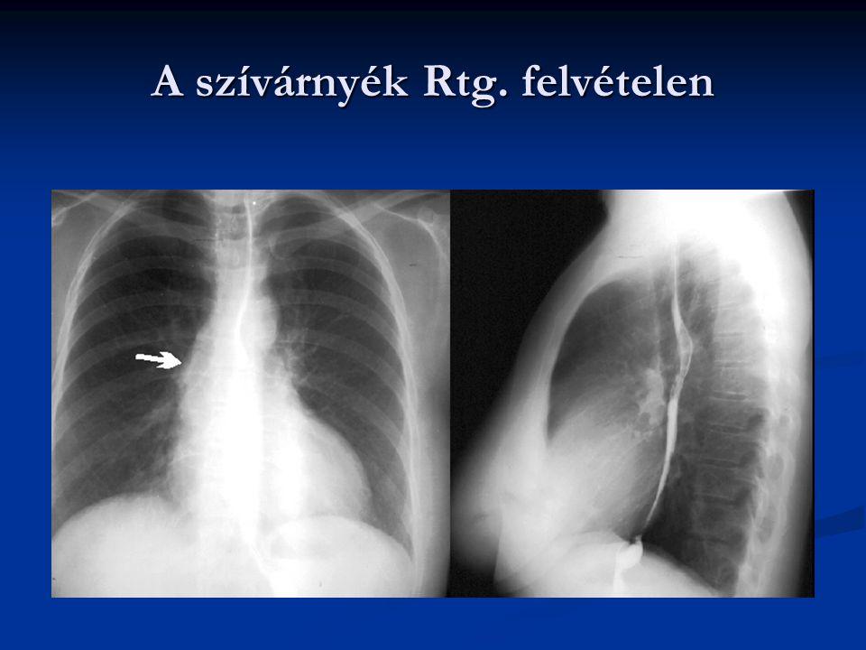 A szívciklus A szívciklus egy inger hatására végbemenő systoléból és diastoléból álló folyamat.