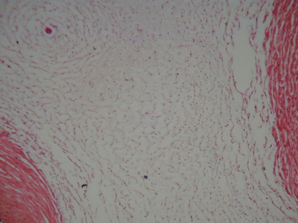 * lazarostos kötőszövet: a rostok laza szerkezetű hálózatot képeznek.