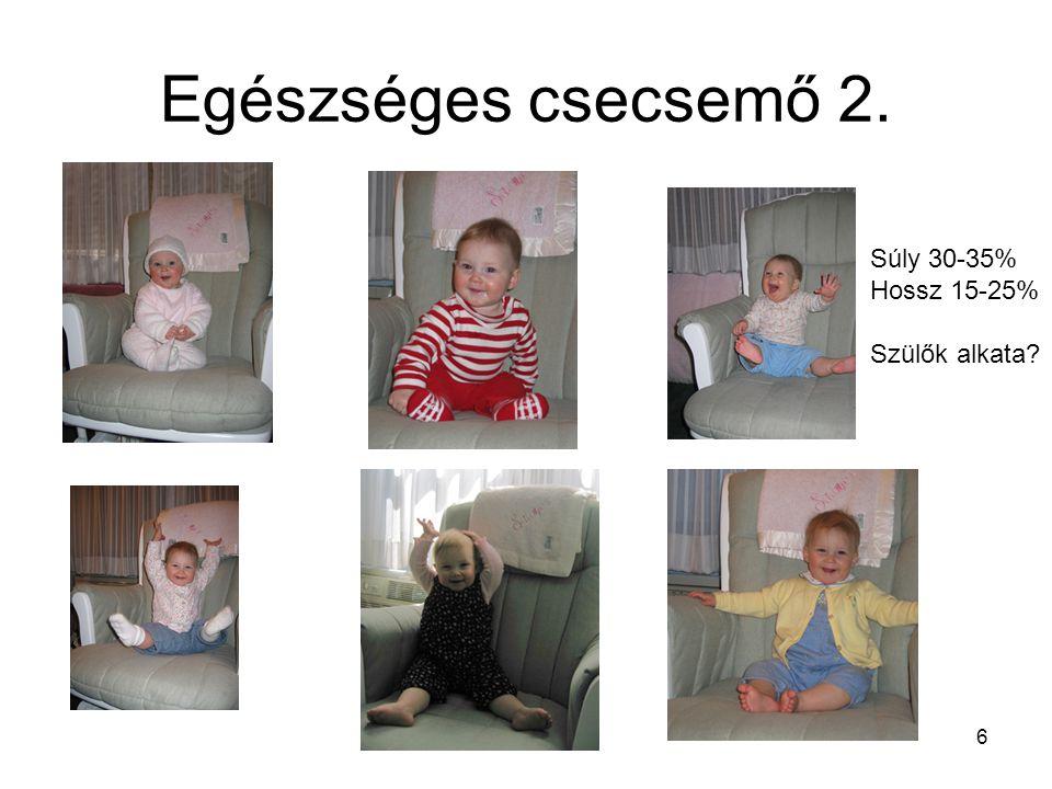 17 Kisiskolás 6 éves: ♂ 18,5 kg♀ 17,9 kg 111 cm 110 cm Mozgékony Kisiskolás(6 – 8 éves) lányok 1 cm-el, 0,5 – 1 kg-al kisebbek mozgás koordinálása javul Praepubertas(9 – 12 éves) lányok 12 éves korra a fiúk fölé (második teltség) L: 20 / min P: 85 – 90RR: 100 / 66 Kiegyensúlyozott psziché, szociális magatartás, barátok, csoportok