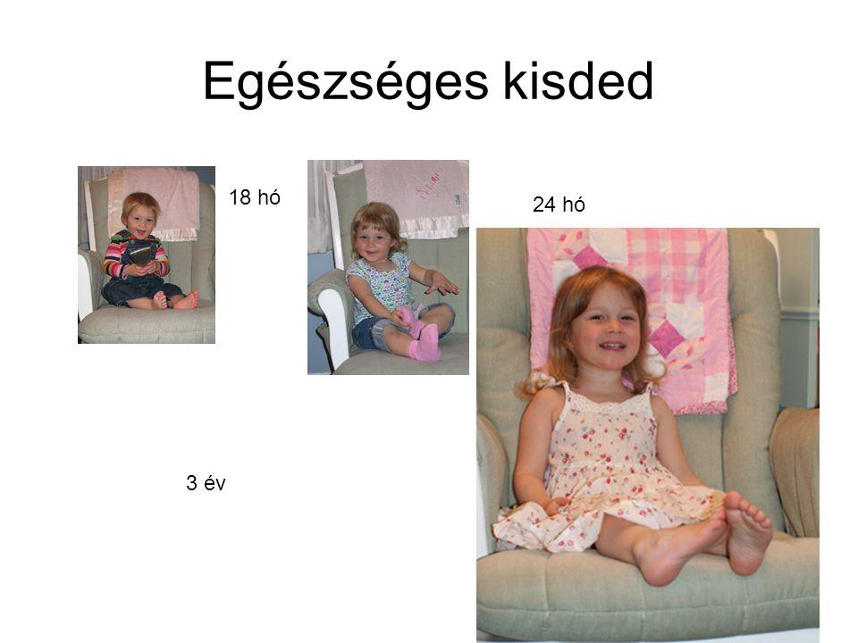 8 Újszülött Újszülöttkor: születés  6.életnap vége Perinatalis időszak: terhesség 28.