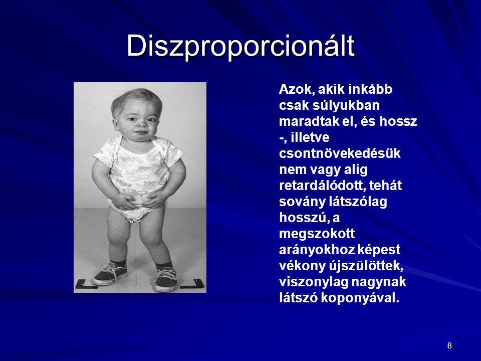 8 Diszproporcionált Azok, akik inkább csak súlyukban maradtak el, és hossz -, illetve csontnövekedésük nem vagy alig retardálódott, tehát sovány látsz