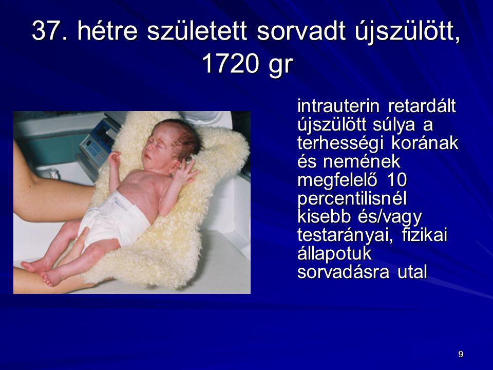 9 37. hétre született sorvadt újszülött, 1720 gr intrauterin retardált újszülött súlya a terhességi korának és nemének megfelelő 10 percentilisnél kis