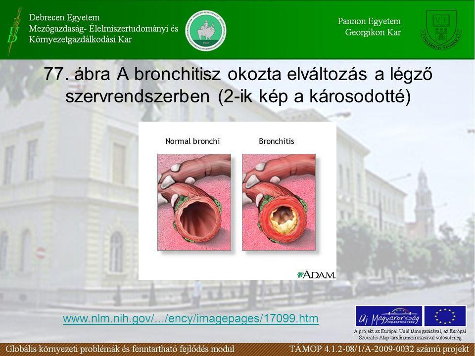 77. ábra A bronchitisz okozta elváltozás a légző szervrendszerben (2-ik kép a károsodotté) www.nlm.nih.gov/.../ency/imagepages/17099.htm