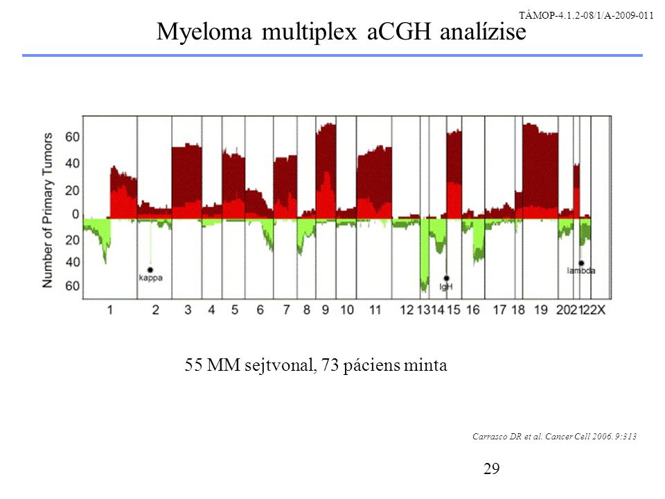 29 Myeloma multiplex aCGH analízise Carrasco DR et al. Cancer Cell 2006. 9:313 55 MM sejtvonal, 73 páciens minta TÁMOP-4.1.2-08/1/A-2009-011