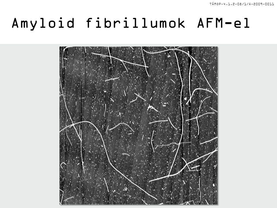 TÁMOP-4.1.2-08/1/A-2009-0011 Amyloid fibrillumok AFM-el