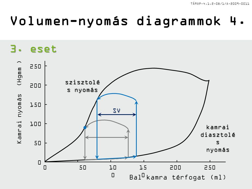 TÁMOP-4.1.2-08/1/A-2009-0011 Bal kamra térfogat (ml) szisztolé s nyomás kamrai diasztolé s nyomás Volumen-nyomás diagrammok 4.