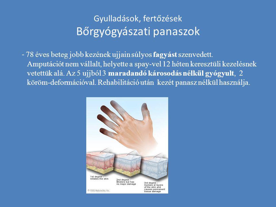 Gyulladások, fertőzések Bőrgyógyászati panaszok - 78 éves beteg jobb kezének ujjain súlyos fagyást szenvedett. Amputációt nem vállalt, helyette a spay