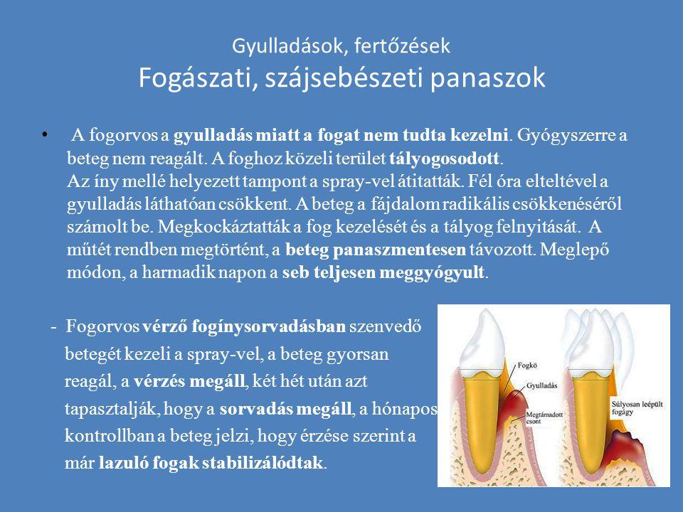 Gyulladások, fertőzések Fogászati, szájsebészeti panaszok A fogorvos a gyulladás miatt a fogat nem tudta kezelni. Gyógyszerre a beteg nem reagált. A f