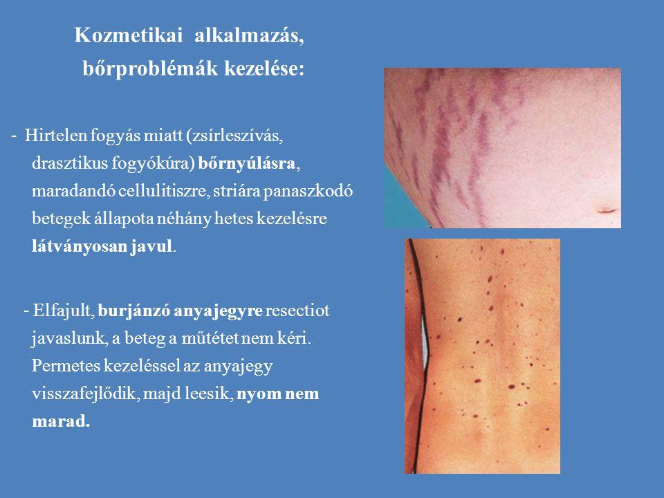Kozmetikai alkalmazás, bőrproblémák kezelése: - Hirtelen fogyás miatt (zsírleszívás, drasztikus fogyókúra) bőrnyúlásra, maradandó cellulitiszre, striá