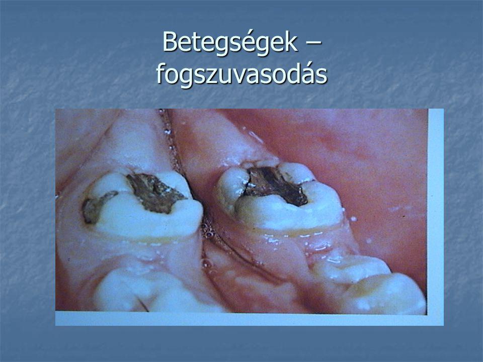 Betegségek – fogszuvasodás