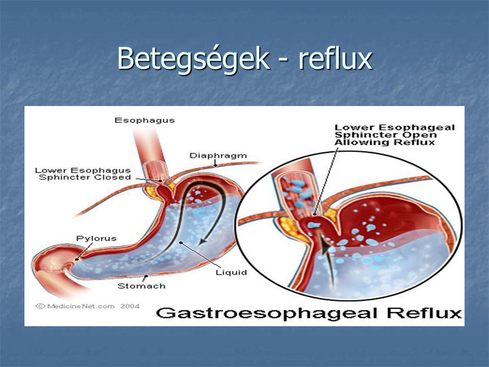 Betegségek - reflux