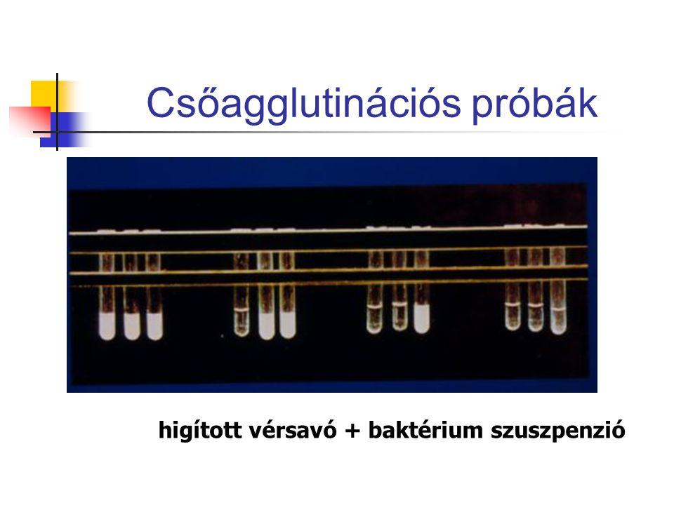 Csőagglutinációs próbák higított vérsavó + baktérium szuszpenzió