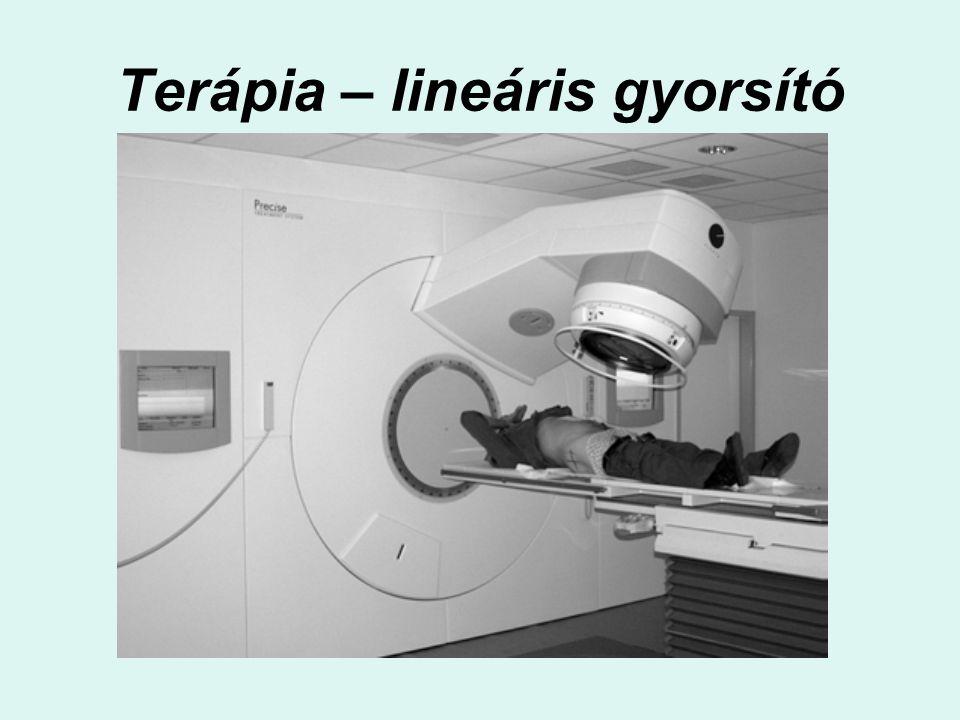 Terápia – lineáris gyorsító