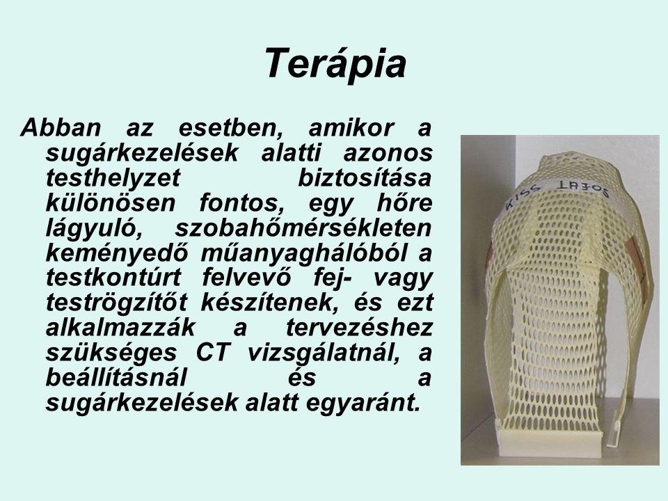 Terápia Abban az esetben, amikor a sugárkezelések alatti azonos testhelyzet biztosítása különösen fontos, egy hőre lágyuló, szobahőmérsékleten keménye