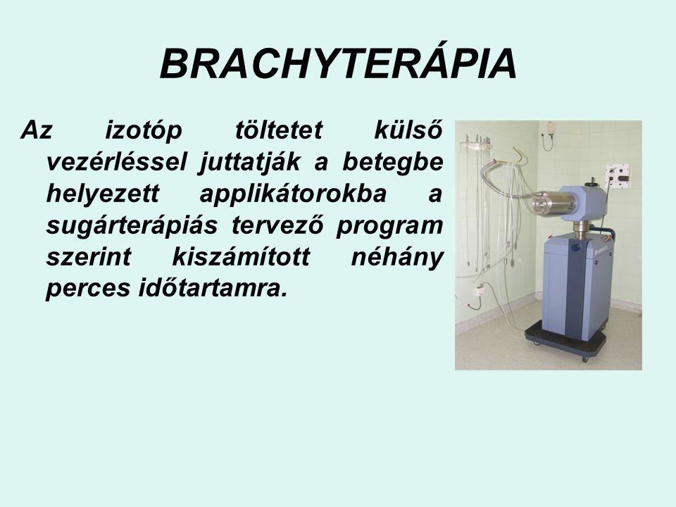 BRACHYTERÁPIA Az izotóp töltetet külső vezérléssel juttatják a betegbe helyezett applikátorokba a sugárterápiás tervező program szerint kiszámított né