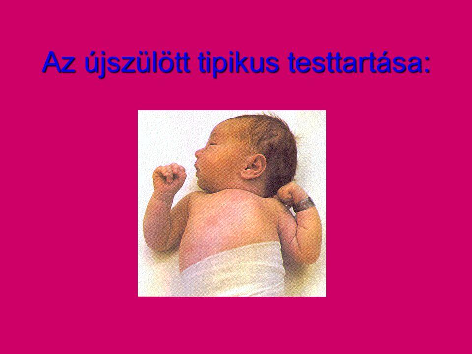 Az újszülött tipikus testtartása: