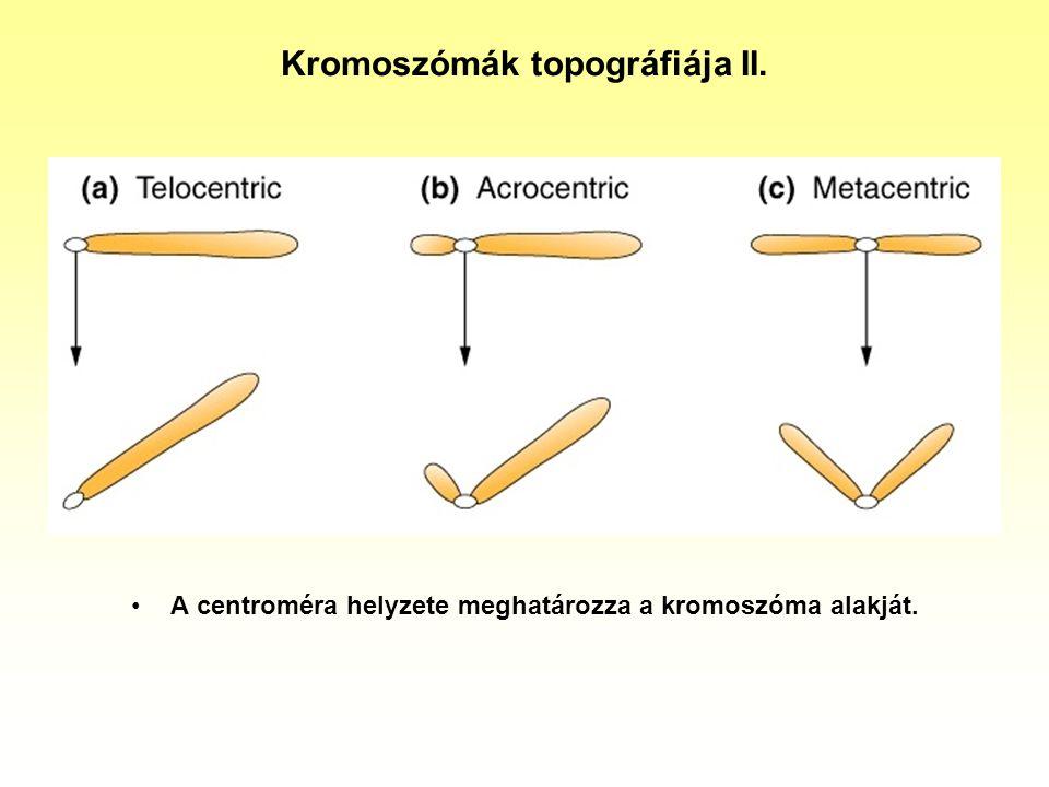 Emberi monoszóm a Turner szindróma (XO) 44A+1X, alacsony növésű, a váll és nyak közötti bőrlebennyel, menstruáció nélküli nő, 1/5000 gyakorisággal fordul elő.