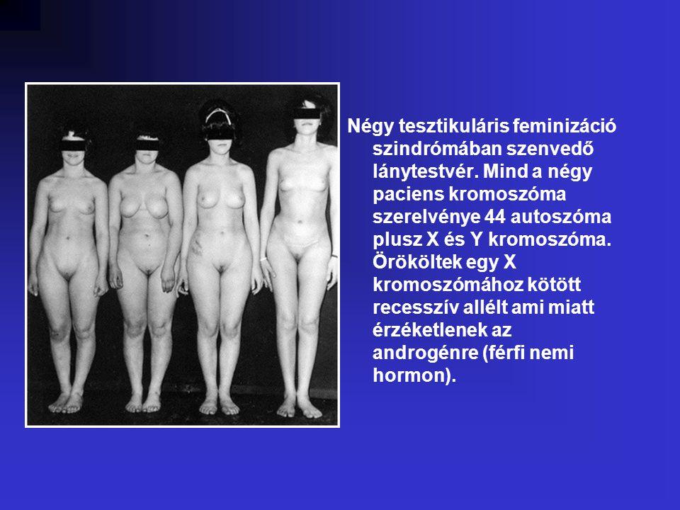 Négy tesztikuláris feminizáció szindrómában szenvedő lánytestvér.