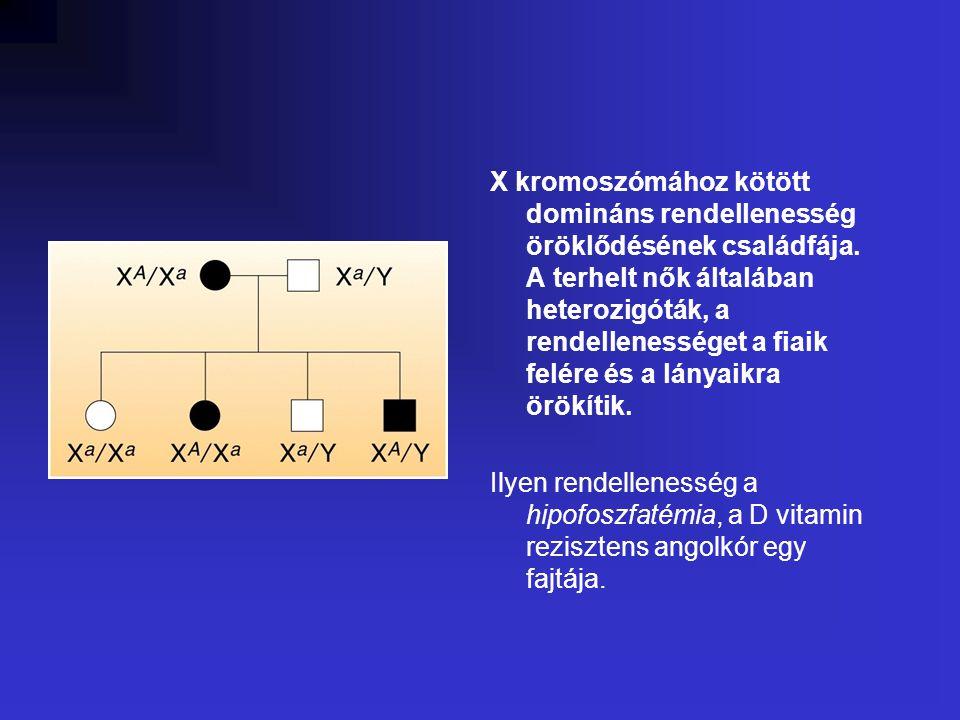 X kromoszómához kötött domináns rendellenesség öröklődésének családfája.