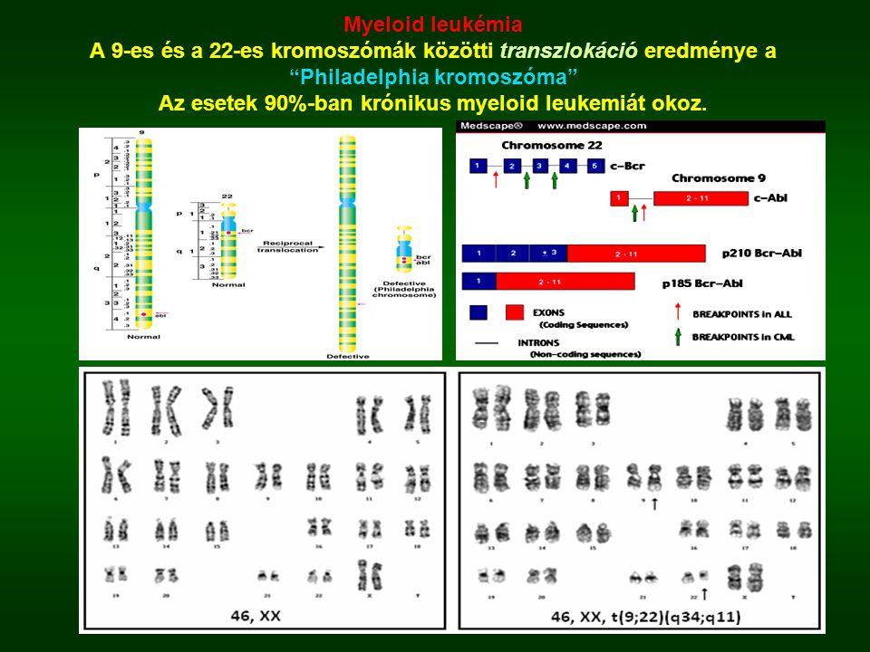 """Myeloid leukémia A 9-es és a 22-es kromoszómák közötti transzlokáció eredménye a """"Philadelphia kromoszóma"""" Az esetek 90%-ban krónikus myeloid leukemiá"""
