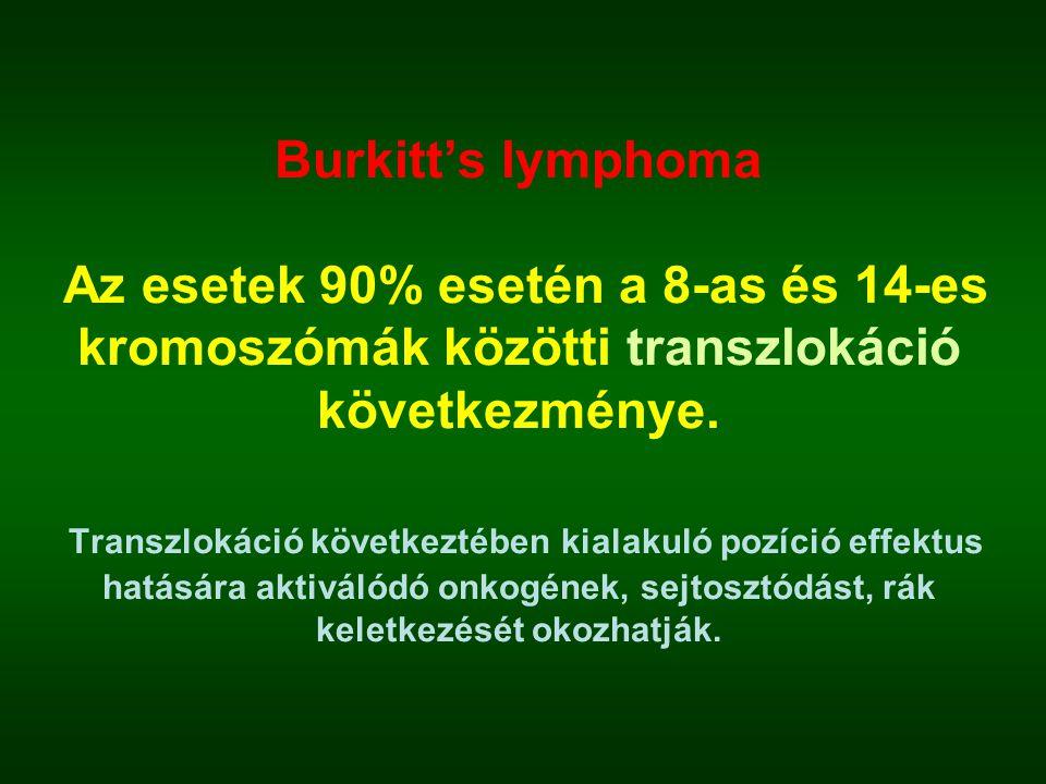Burkitt's lymphoma Az esetek 90% esetén a 8-as és 14-es kromoszómák közötti transzlokáció következménye. Transzlokáció következtében kialakuló pozíció