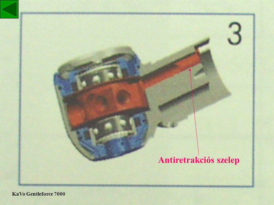 """A KAVO 640-B típusú turbinás kézidarab belső szerkezete """"antiretrakciós szelep"""""""