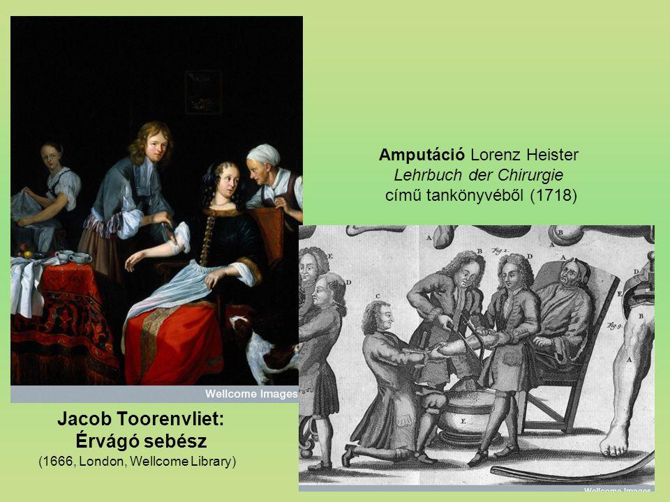 Jacob Toorenvliet: Érvágó sebész (1666, London, Wellcome Library) Amputáció Lorenz Heister Lehrbuch der Chirurgie című tankönyvéből (1718)