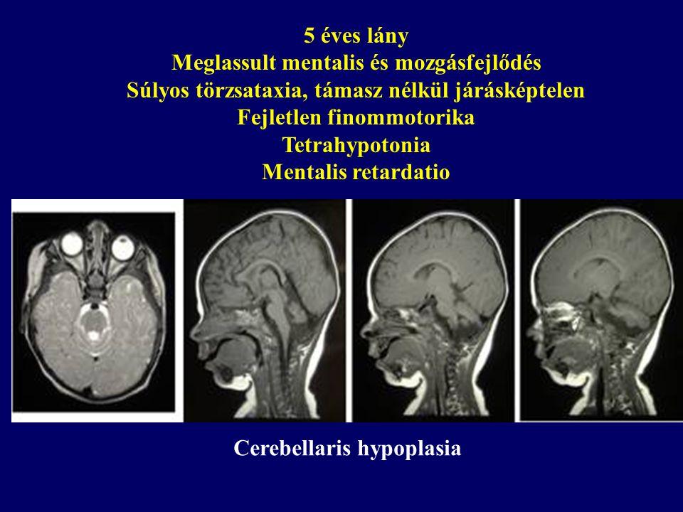 5 éves lány Meglassult mentalis és mozgásfejlődés Súlyos törzsataxia, támasz nélkül járásképtelen Fejletlen finommotorika Tetrahypotonia Mentalis retardatio Cerebellaris hypoplasia