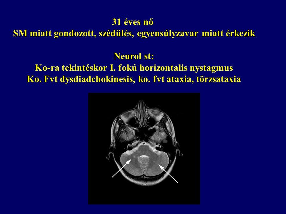 31 éves nő SM miatt gondozott, szédülés, egyensúlyzavar miatt érkezik Neurol st: Ko-ra tekintéskor I. fokú horizontalis nystagmus Ko. Fvt dysdiadchoki