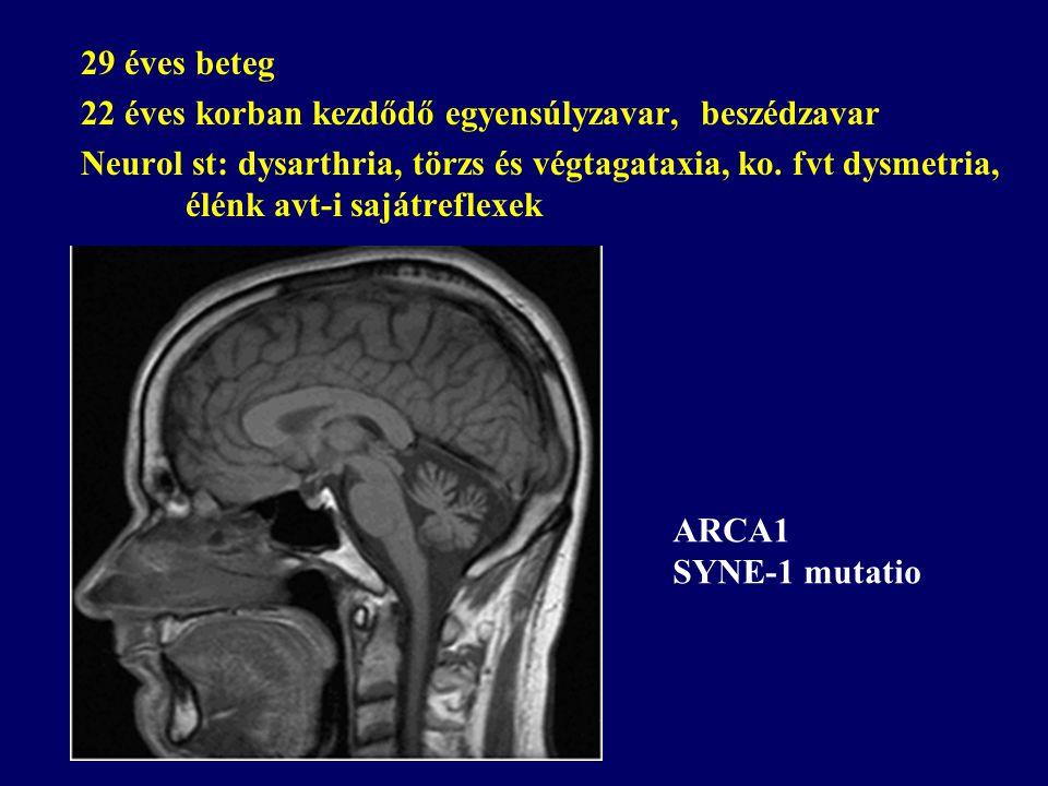 29 éves beteg 22 éves korban kezdődő egyensúlyzavar, beszédzavar Neurol st: dysarthria, törzs és végtagataxia, ko. fvt dysmetria, élénk avt-i sajátref