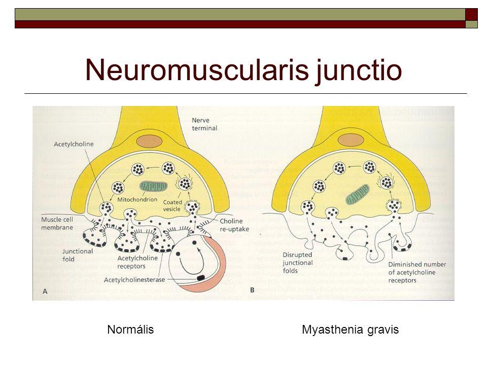 Neuromuscularis junctio NormálisMyasthenia gravis