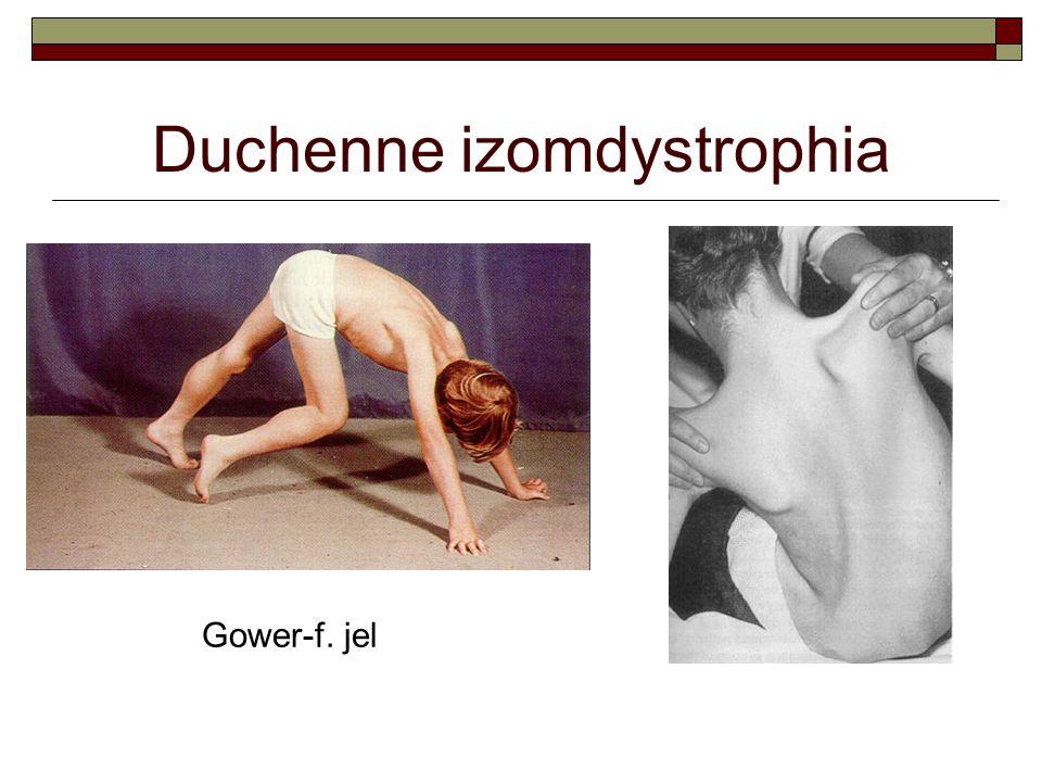 Duchenne izomdystrophia Gower-f. jel