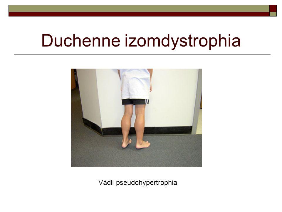 Duchenne izomdystrophia Vádli pseudohypertrophia
