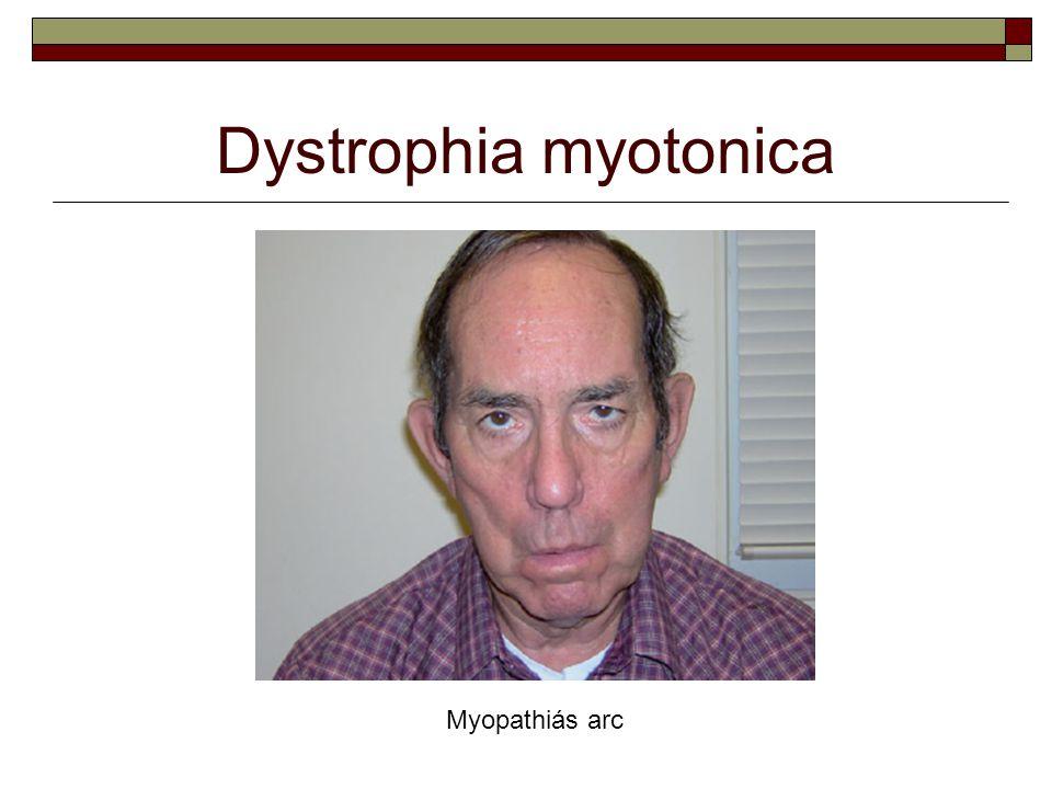 Myopathiás arc