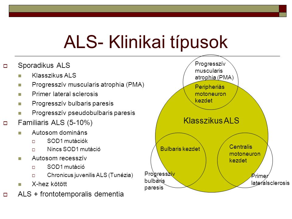 ALS- Klinikai típusok Klasszikus ALS Peripheriás motoneuron kezdet Progresszív muscularis atrophia (PMA) Bulbaris kezdet Progresszív bulbaris paresis