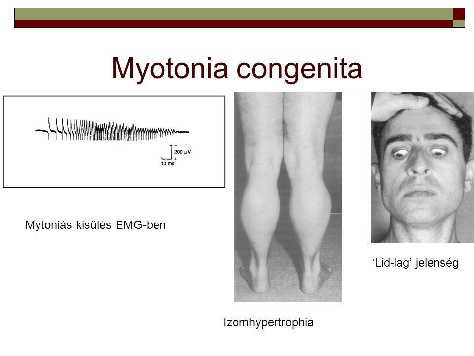 Myotonia congenita Mytoniás kisülés EMG-ben Izomhypertrophia 'Lid-lag' jelenség