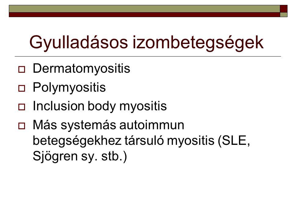 Gyulladásos izombetegségek  Dermatomyositis  Polymyositis  Inclusion body myositis  Más systemás autoimmun betegségekhez társuló myositis (SLE, Sj