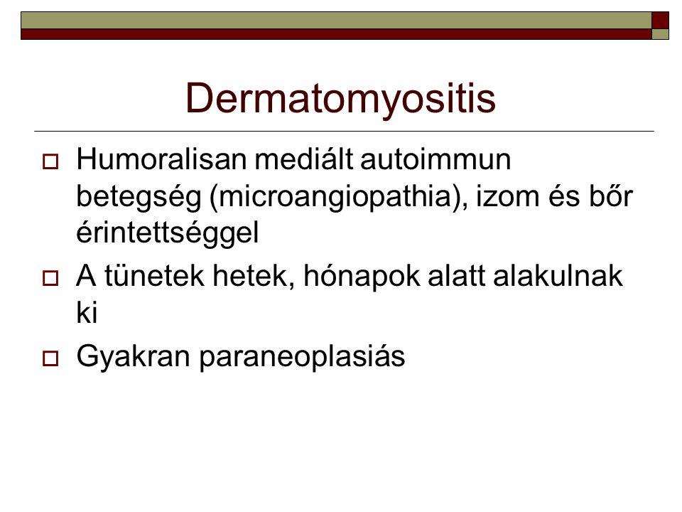 Dermatomyositis  Humoralisan mediált autoimmun betegség (microangiopathia), izom és bőr érintettséggel  A tünetek hetek, hónapok alatt alakulnak ki