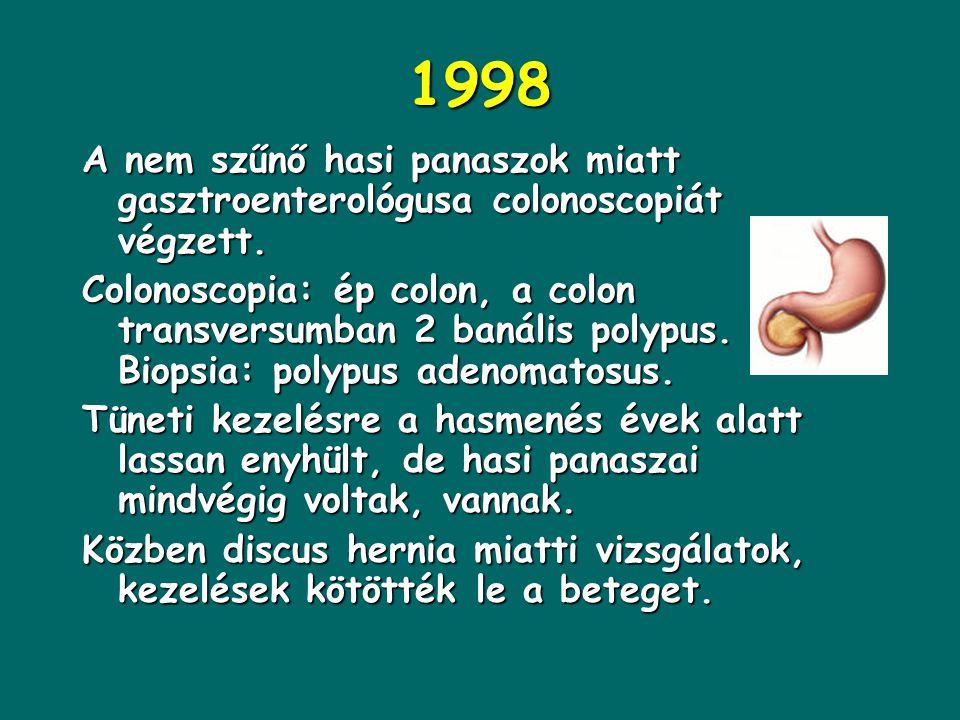3. SL 78 éves nőbeteg 1993: acut, intenzív gyomorfájás miatti endoscopia során ujjbegyni ulcus cc. derült ki, gastrectomia történt. Hosszas lábadozás