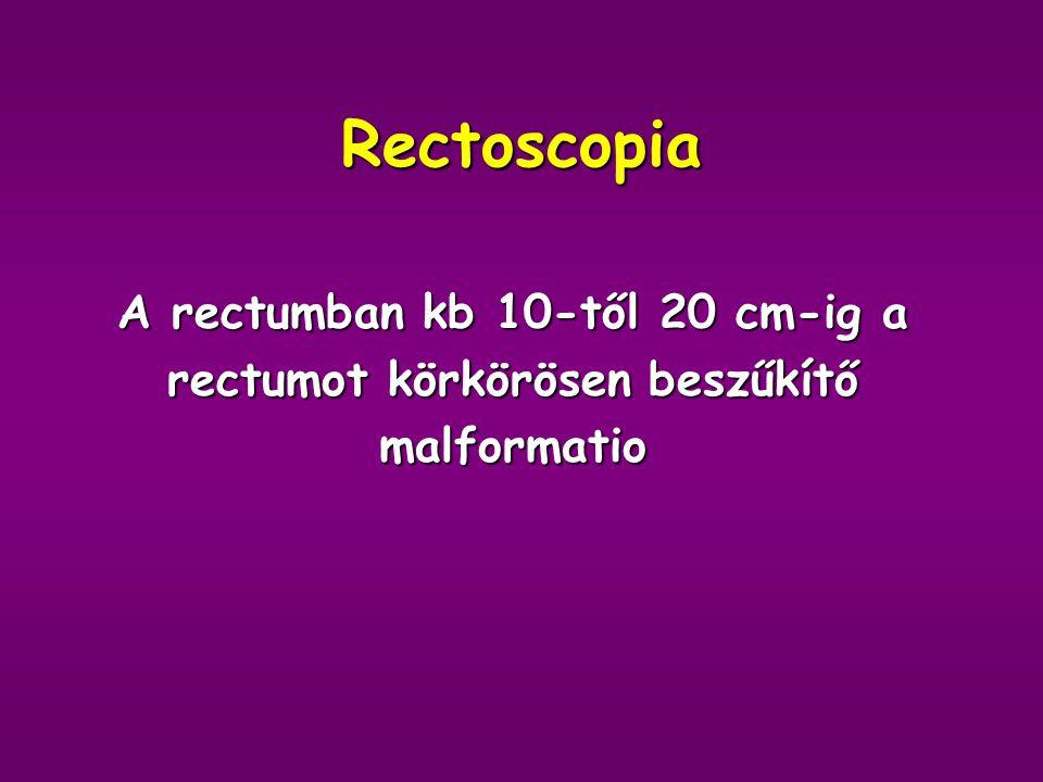Gyógyszerei DiétaACEIDigitalisDiureticumAntidiabeticum
