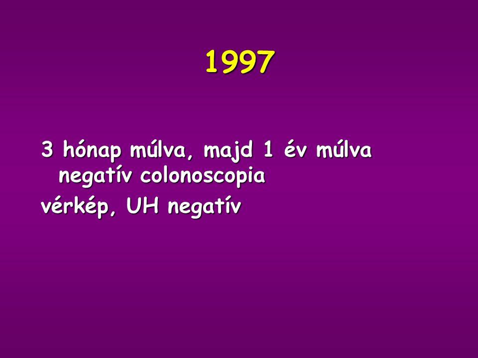 Műtét: 1996 okt. Hemicolectomia és kiterjesztett lymphadenectomia Histologia: Adenocarcinoma papillare exulcerans - magasan differenciált 15 vizsgált