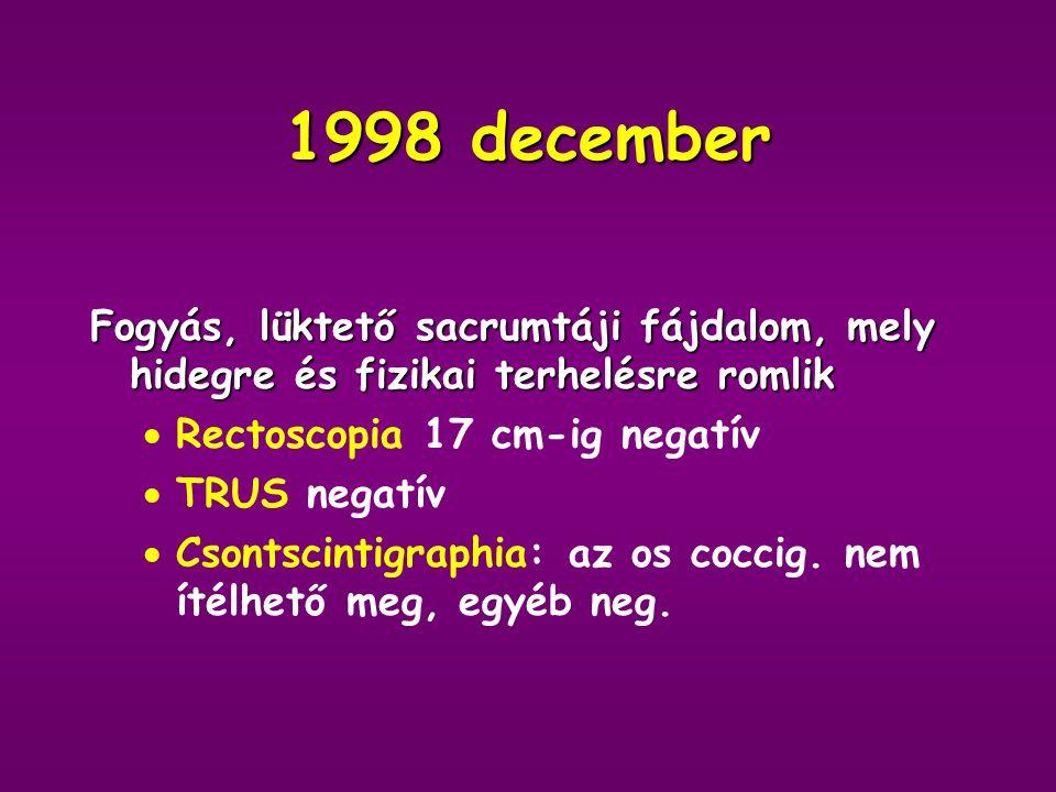 1998 Cardiológiai kontroll: EF 28%, tág, hypokinetikus balkamra, csúcsi thrombus Anticoagulans kezelést kezdünk