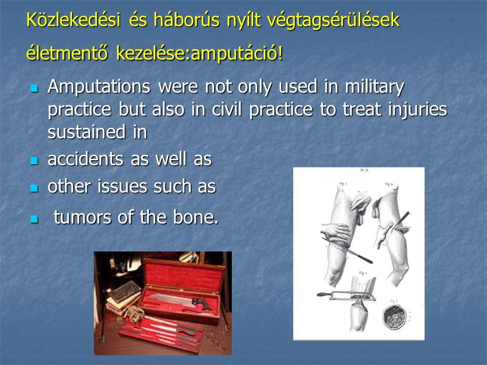 Közlekedési és háborús nyílt végtagsérülések életmentő kezelése:amputáció.