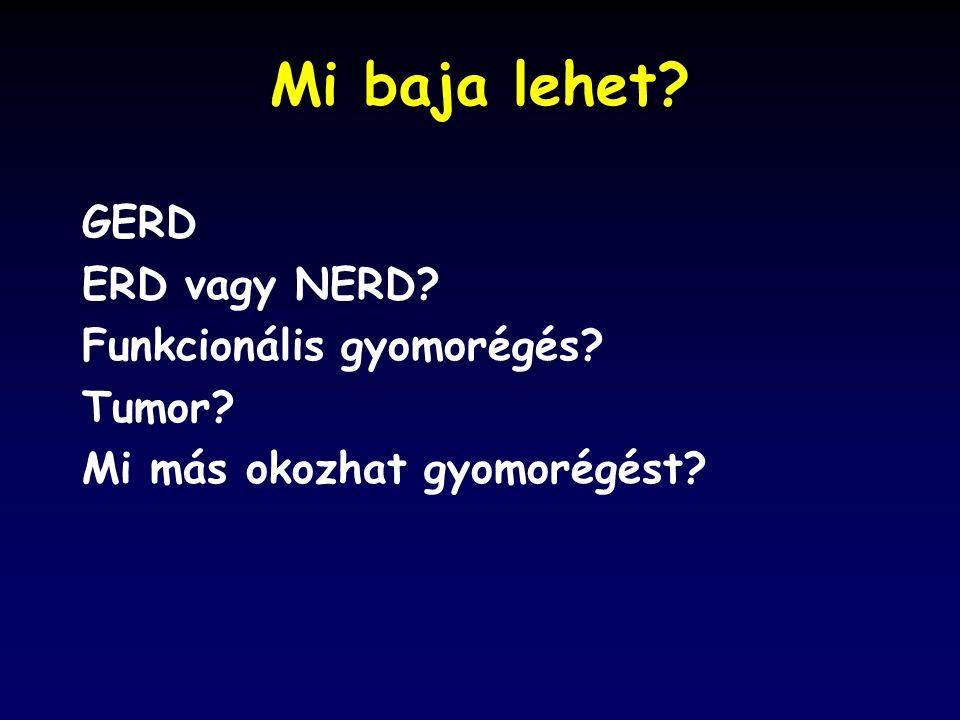 Mi baja lehet? GERD ERD vagy NERD? Funkcionális gyomorégés? Tumor? Mi más okozhat gyomorégést?