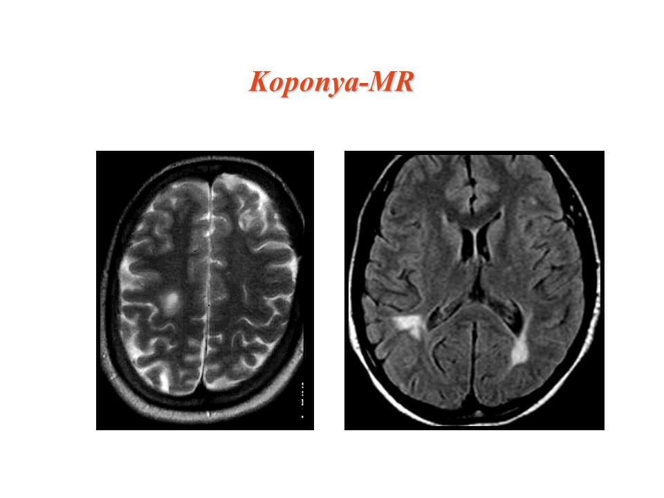 Koponya-MRKoponya-MR