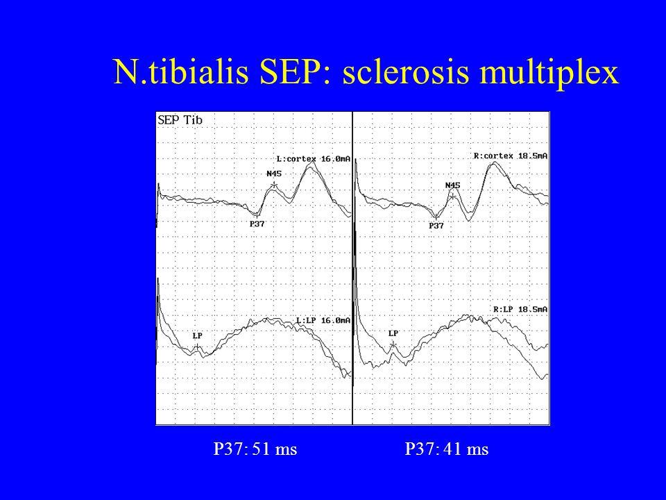 N.tibialis SEP: sclerosis multiplex P37: 51 msP37: 41 ms