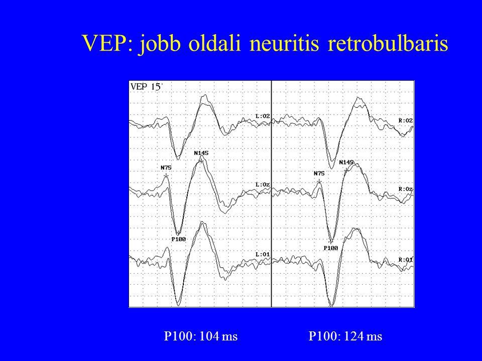VEP: jobb oldali neuritis retrobulbaris P100: 104 msP100: 124 ms
