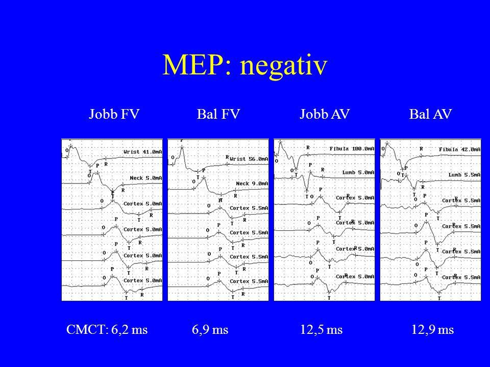 MEP: negativ Jobb FVBal FVBal AVJobb AV CMCT: 6,2 ms 6,9 ms 12,5 ms 12,9 ms