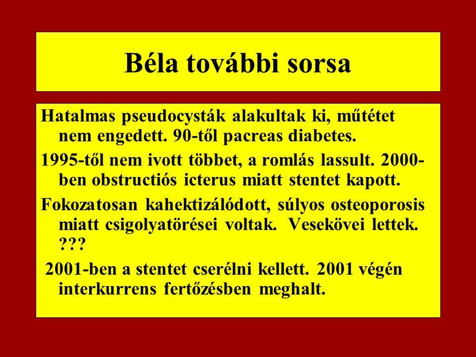 Béla további sorsa Hatalmas pseudocysták alakultak ki, műtétet nem engedett. 90-től pacreas diabetes. 1995-től nem ivott többet, a romlás lassult. 200