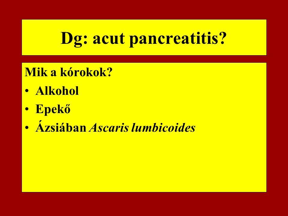 Dg: acut pancreatitis? Mik a kórokok? Alkohol Epekő Ázsiában Ascaris lumbicoides